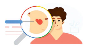 چالش ابزار هوش مصنوعی جدید گوگل برای تشخیص بیماریهای پوستی